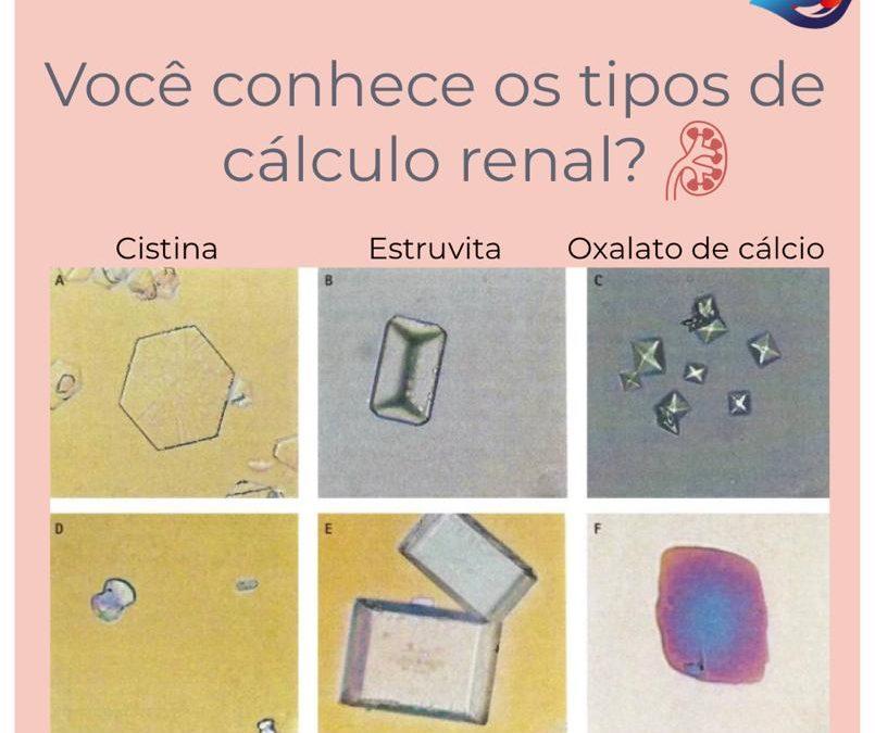 Os tipos de cálculo renal