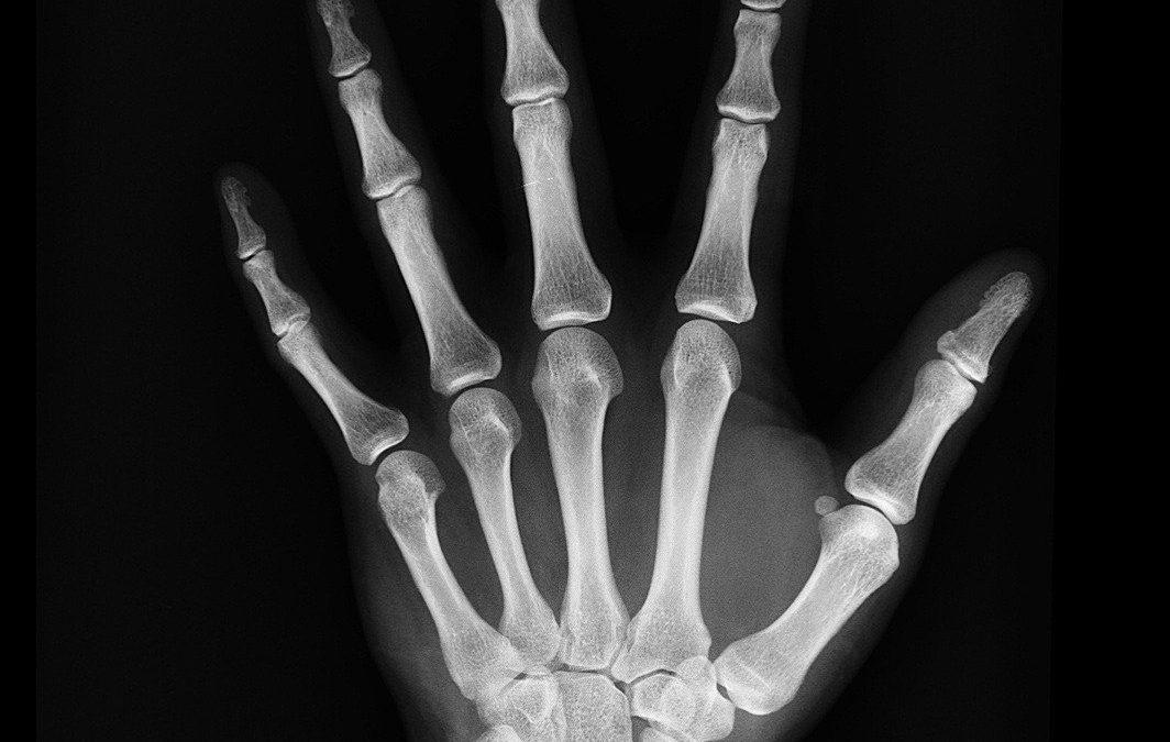 A relação entre idade óssea e cronológica